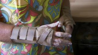 Yvonne Spencer's arm support