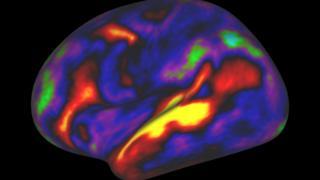 Mapa de actividad del cerebro