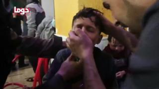 Un niños recibe asistencia respiratoria tras un supuesto ataque químico.