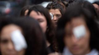 Una protesta de mujeres en Chile contra el uso de las balas de goma durante las manifestaciones.