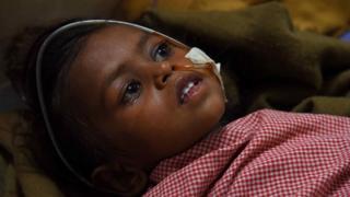 Niña india recibiendo tratamiento para la encefalitis japonesa.