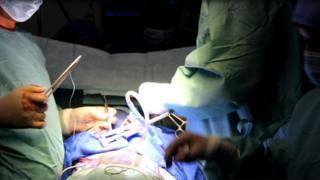 """Au Mali, les premières opérations consistant """"à arrêter le cœur, enlever une valve malade et la remplacer par une valve synthétique"""" ont eu lieu en septembre 2016."""