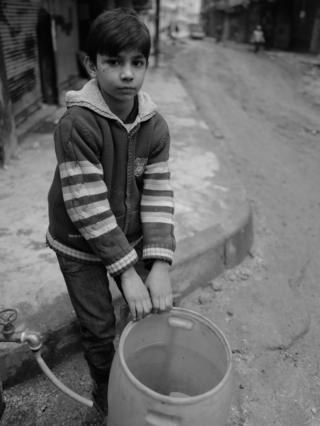 Oğlan ailəsi üçün su yığıb. Onun sağ gözünün altında, dərinin altında qalan qəlpə izlərinə diqqət yetirin