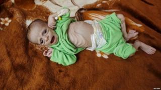 Nafaqo daro ba'an ayaa la sheegay in ay ku habsatay caruurta dalkaasi Yemen