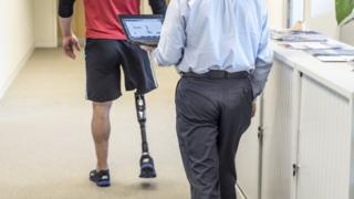 prosthetic leg being calibrated