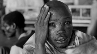 A wounded person looks at the camera