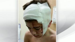 Owen Russell in hospital