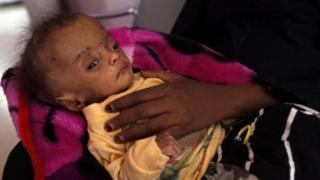 คนหลายล้านในเยเมนเสี่ยงต่อภาวะขาดอาหารรุนแรงเนื่องมาจากสงคราม