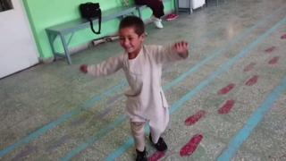 Ахмад - один із багатьох дітей, які постраждали внаслідок війни в Афганістані.