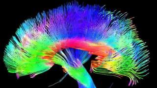 آیا واقعا مغز انسان صرفا یک مجموعه پیچیده متشکل از ماشینهای کوچک است؟