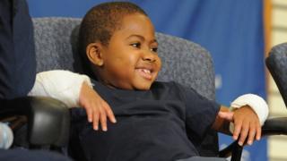 La première greffe des deux mains chez un enfant.