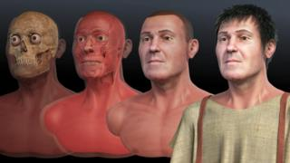 Phases of the facial reconstruction