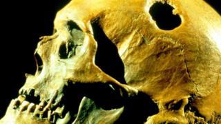 Un cráneo trepanado