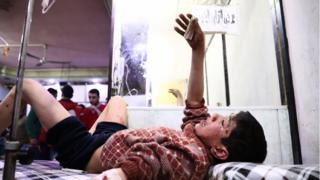 injured children in Syria