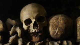 كيف غيرت الحياة الحديثة شكل هيكلنا العظمي؟