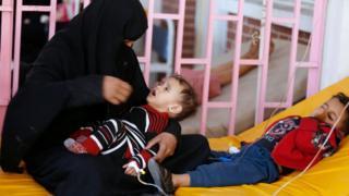 Daa'iimman dhibee koleeraatiif Sana'aa keessatti yaalamaa jiran