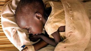 """لغز مرض """"الموت الأصغر"""" الغامض في شرق أفريقيا"""
