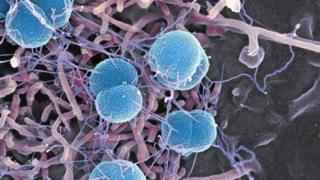 Meningitis bacteria