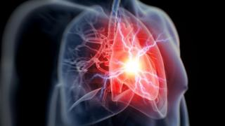 Gráfico mostrando ataque cardíaco