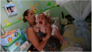 Nouveau-né atteint du virus Zika
