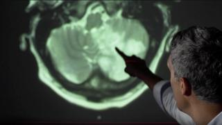 Consultant neurologist Arvind Chandratheva points out brain damage on a scan