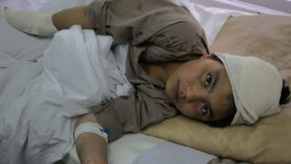 Afghan boy in hospital after a Taliban attack in Kabul, Afghanistan (19 April 2016)