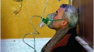Čovek s maskom za kiseonik nakon navodnog napada hemijskim oružjem u Dumi