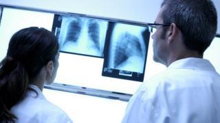Doctors looking at mammograms