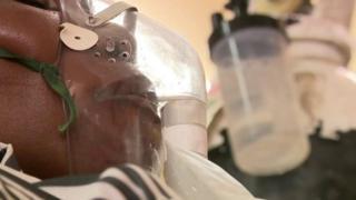 Лекари у Малавију суочевају се са великим проблемима