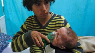 طفل سوري يعاني من ضيق في التنفس