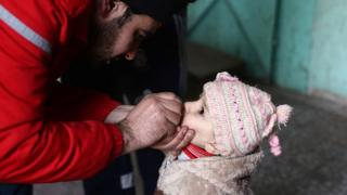 File photo showing a Syrian child receives the oral polio vaccine in the rebel-held Eastern Ghouta, outside Damascus (22 February 2015)