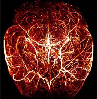 BRITISH HEART FOUNDATION, jantung, pembuluh darah, kompetisi