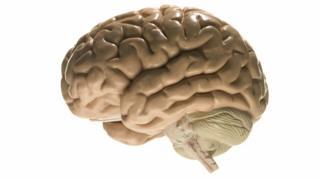 Modelo de un cerebro