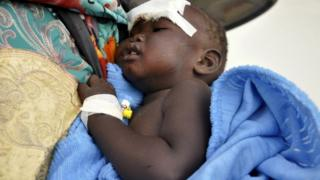 Nyloak Tong, a fourteen month old girl who survived the cargo plane crash after take-off near Juba airport is carried as she receives treatment at the Juba teaching hospital in South Sudan, November 4, 2015