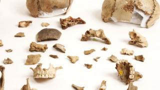 Человеческие кости