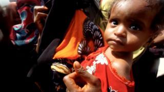 Ребенок в лагере для внутренних беженцев в Йемене