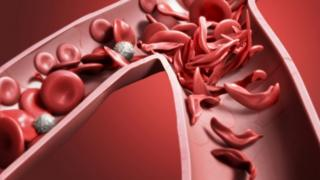 An illustration of how sickle cell disease affects cells