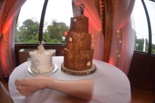 Leg and wedding cake