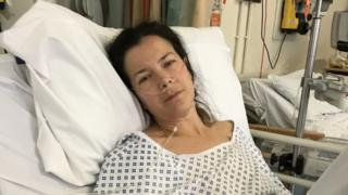 Doctors said Herefordshire woman's bowel cancer was piles