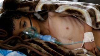 A boy in hospital in Sanaa, Yemen