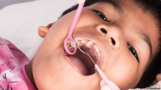 Boy having dental check-up