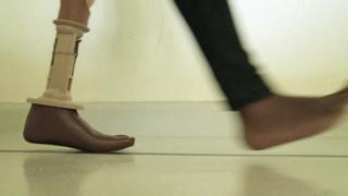 Hi Tech Artificial Limbs in Lucknow