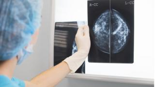 doctor in surgery outfit is holding a mammogram in front of x-ray illuminator