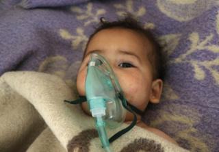 सीरिया के ख़ान शेख़ून में चार अप्रैल 2017 को हुए केमिकल अटैक की चपेट में आए बच्चे की तस्वीर
