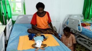 bebê com desnutrição no hospital
