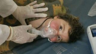 सिरियामा संदिग्ध रासायनिक हमला