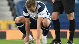 Harry Kane injured