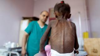 کودک یمنی