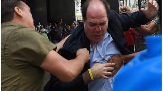 El jefe de la bancada opositora, Julio Borges, herido durante la protesta.