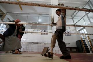 Salah Hassan Abdullah, 13, who lost his leg after a mortar shell hit his village in Yemen's Taiz province, tests an artificial leg at a prosthetic limb centre in Sanaa, Yemen (16 January 2017